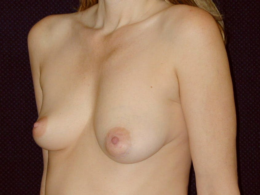 Breast Augmentation Gallery - Patient 39245720 - Image 5
