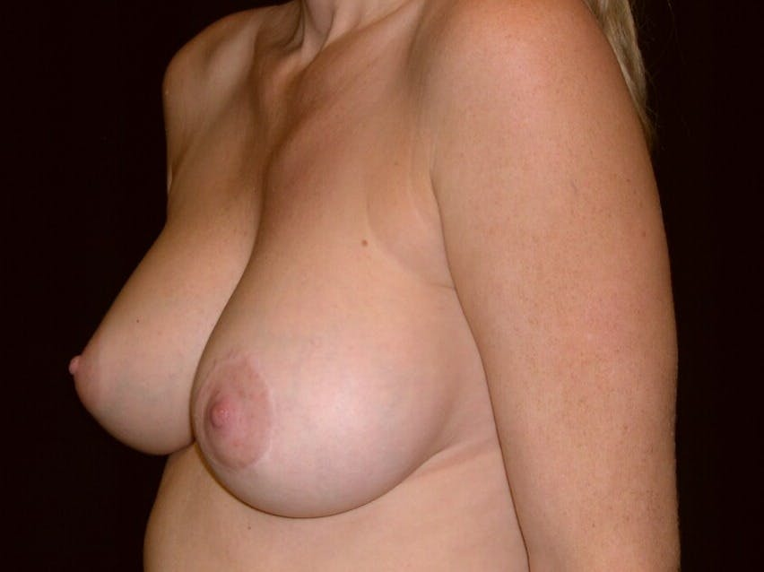 Breast Augmentation Gallery - Patient 39245720 - Image 6