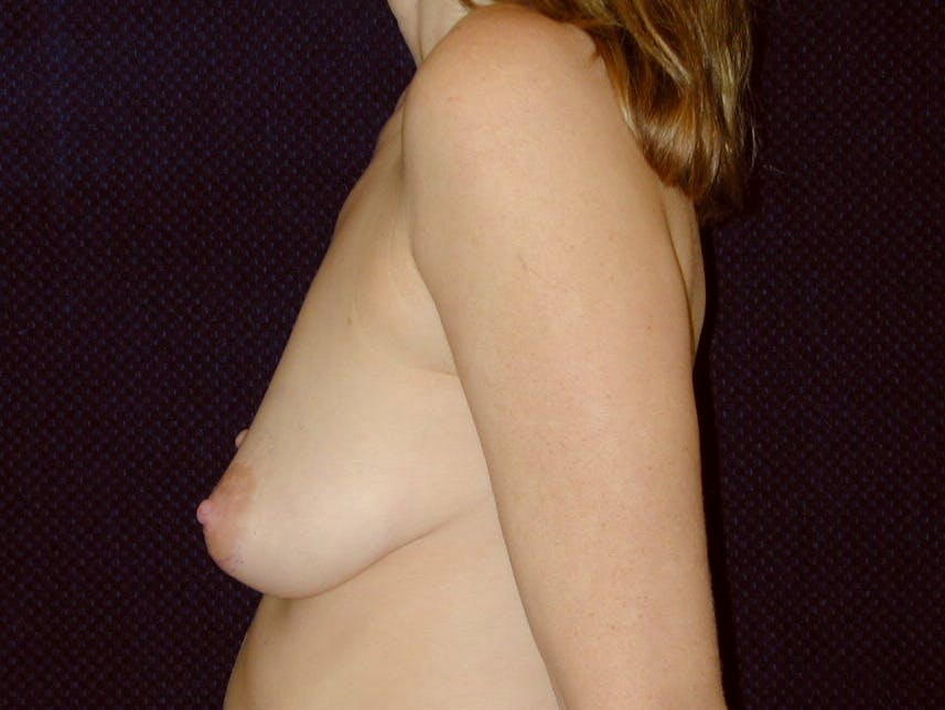 Breast Augmentation Gallery - Patient 39245720 - Image 7