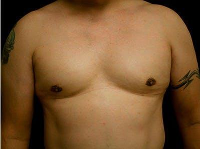 Gynecomastia Gallery - Patient 39245721 - Image 2