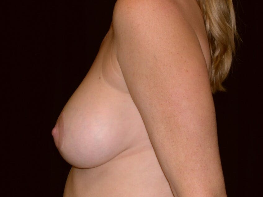 Breast Augmentation Gallery - Patient 39245720 - Image 8
