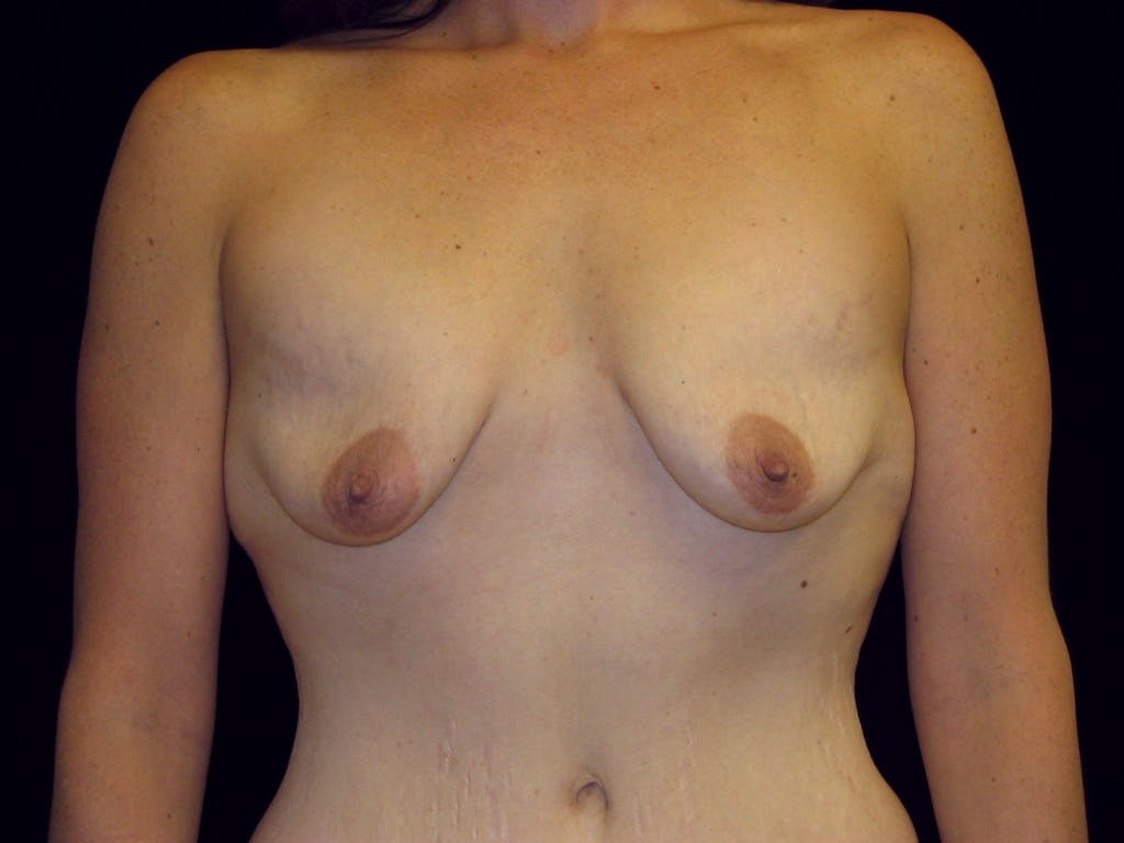 Breast Augmentation Gallery - Patient 39245725 - Image 1