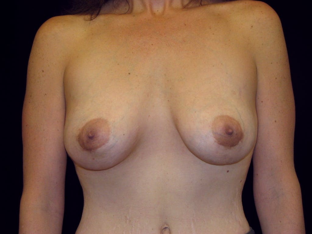 Breast Augmentation Gallery - Patient 39245725 - Image 2