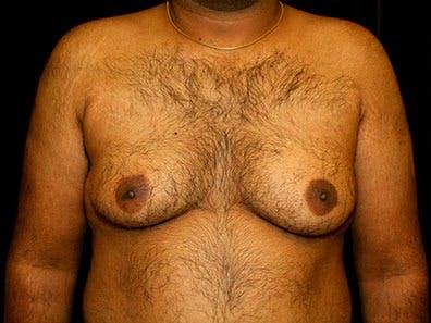 Gynecomastia Gallery - Patient 39245723 - Image 1