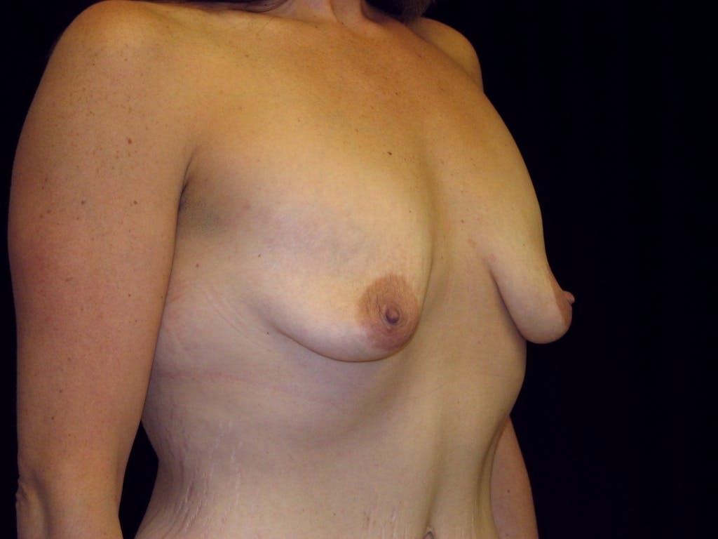 Breast Augmentation Gallery - Patient 39245725 - Image 3