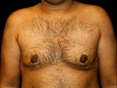 Gynecomastia Gallery - Patient 39245723 - Image 2