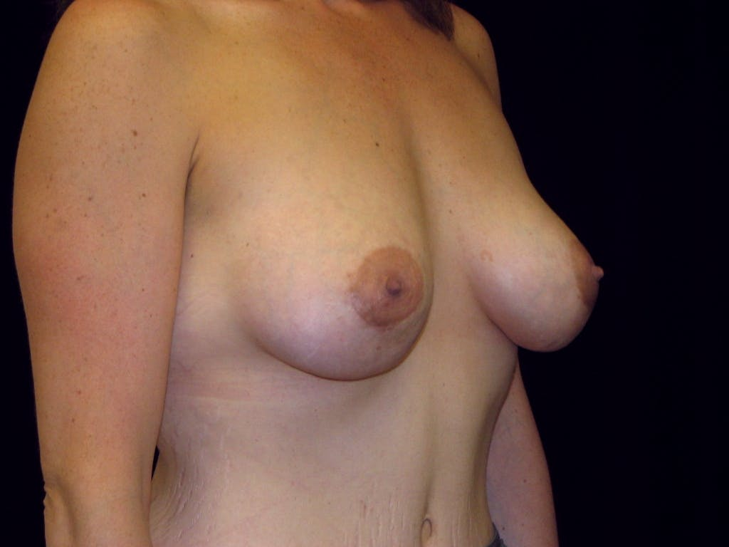 Breast Augmentation Gallery - Patient 39245725 - Image 4