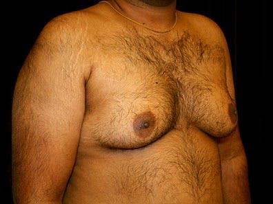 Gynecomastia Gallery - Patient 39245723 - Image 3