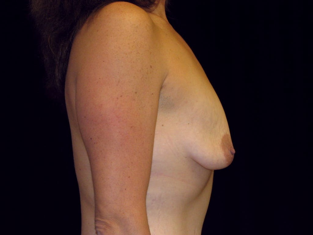 Breast Augmentation Gallery - Patient 39245725 - Image 5