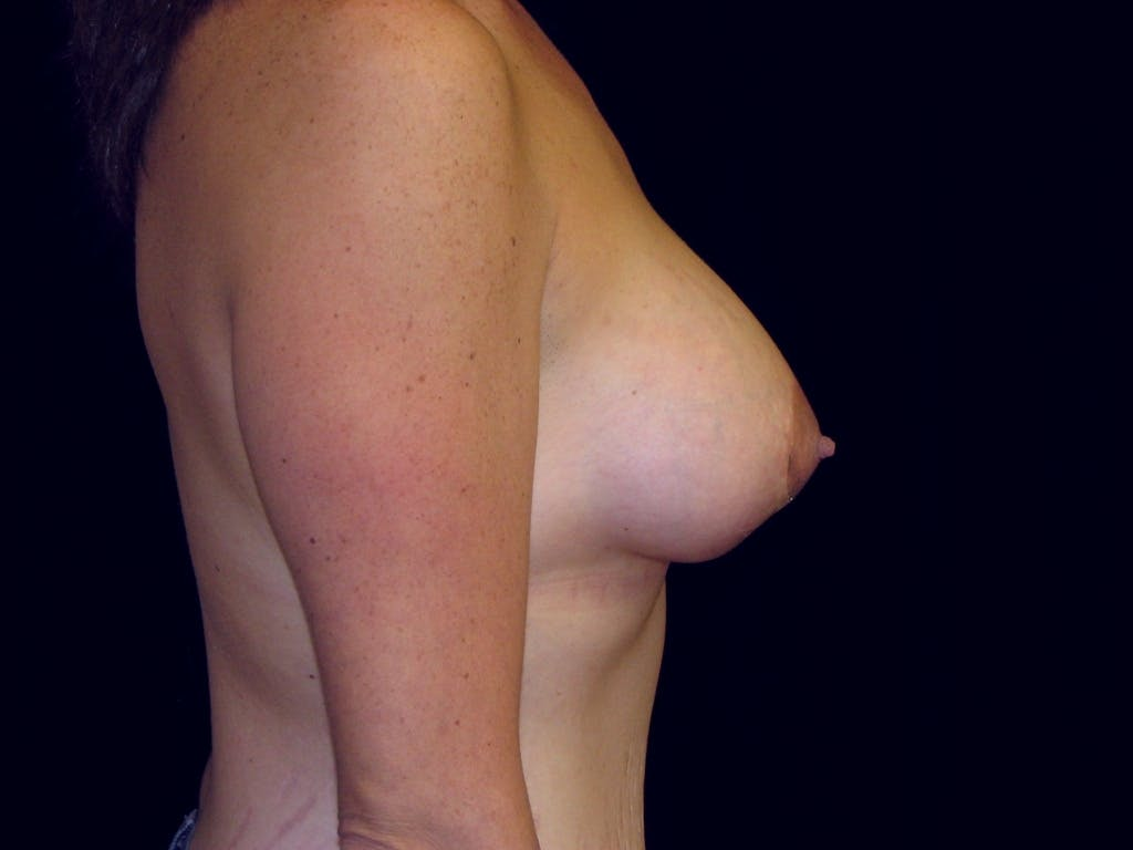 Breast Augmentation Gallery - Patient 39245725 - Image 6