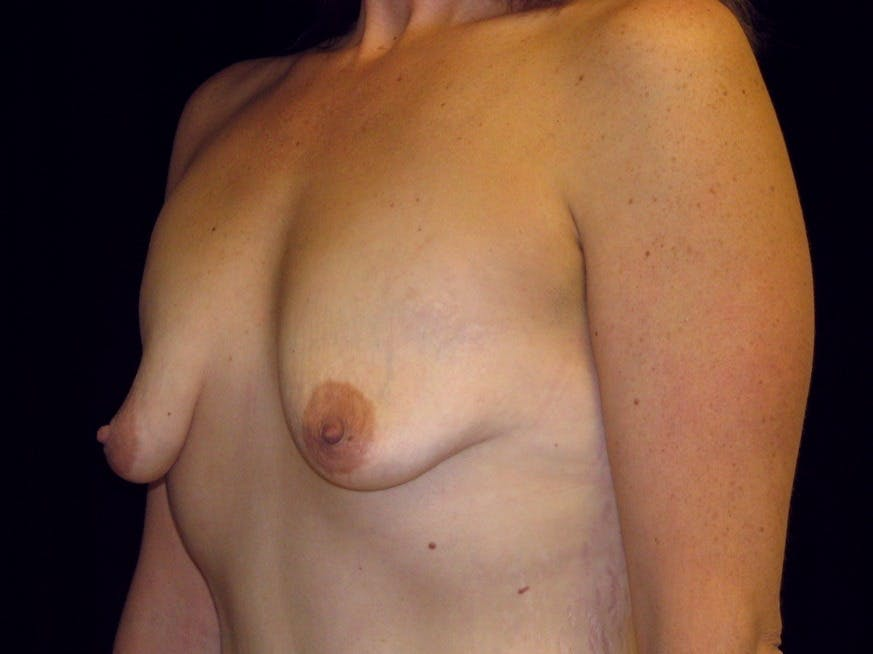 Breast Augmentation Gallery - Patient 39245725 - Image 7
