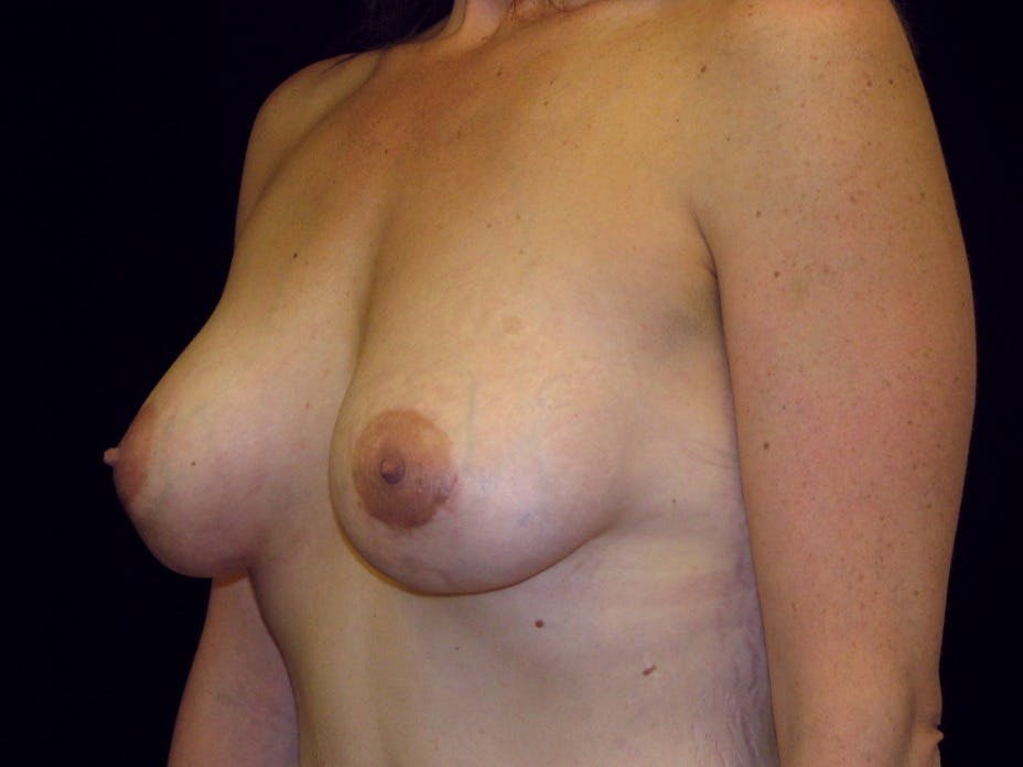 Breast Augmentation Gallery - Patient 39245725 - Image 8