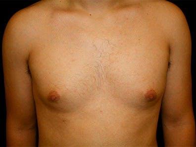 Gynecomastia Gallery - Patient 39245726 - Image 1