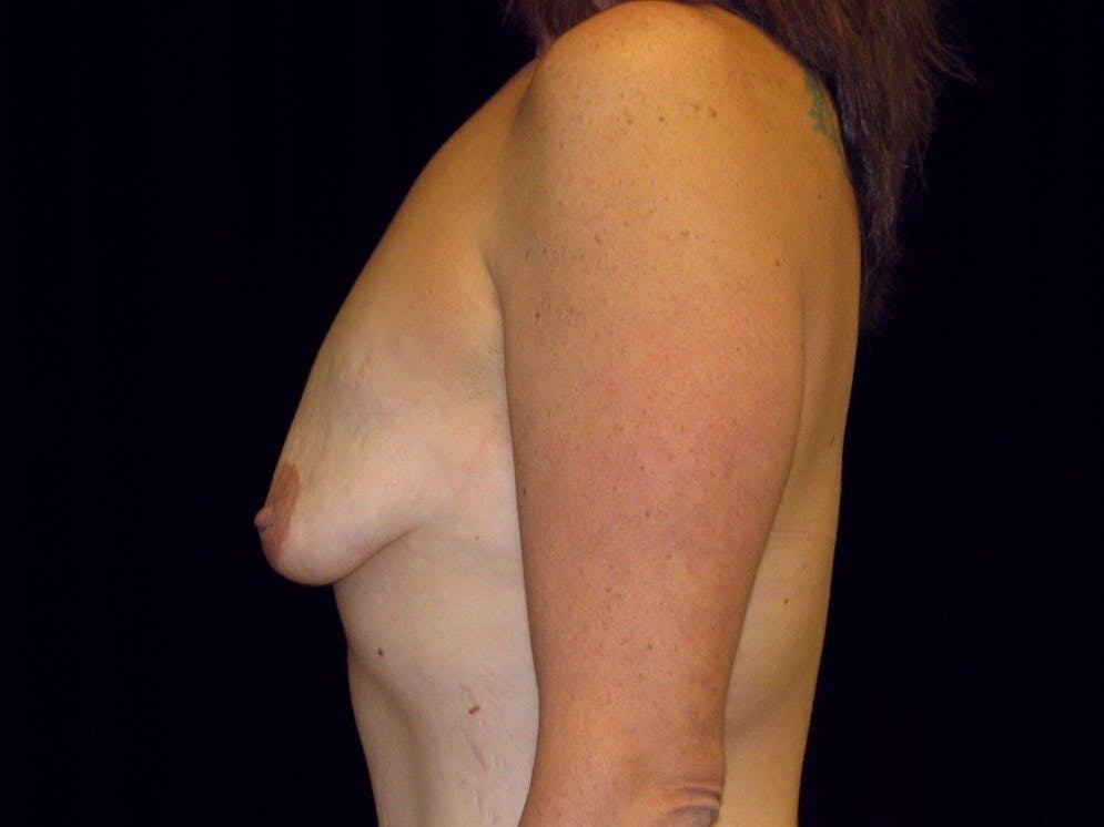 Breast Augmentation Gallery - Patient 39245725 - Image 9
