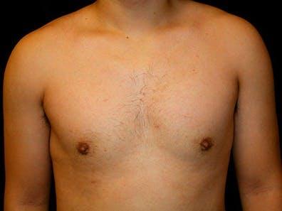 Gynecomastia Gallery - Patient 39245726 - Image 2