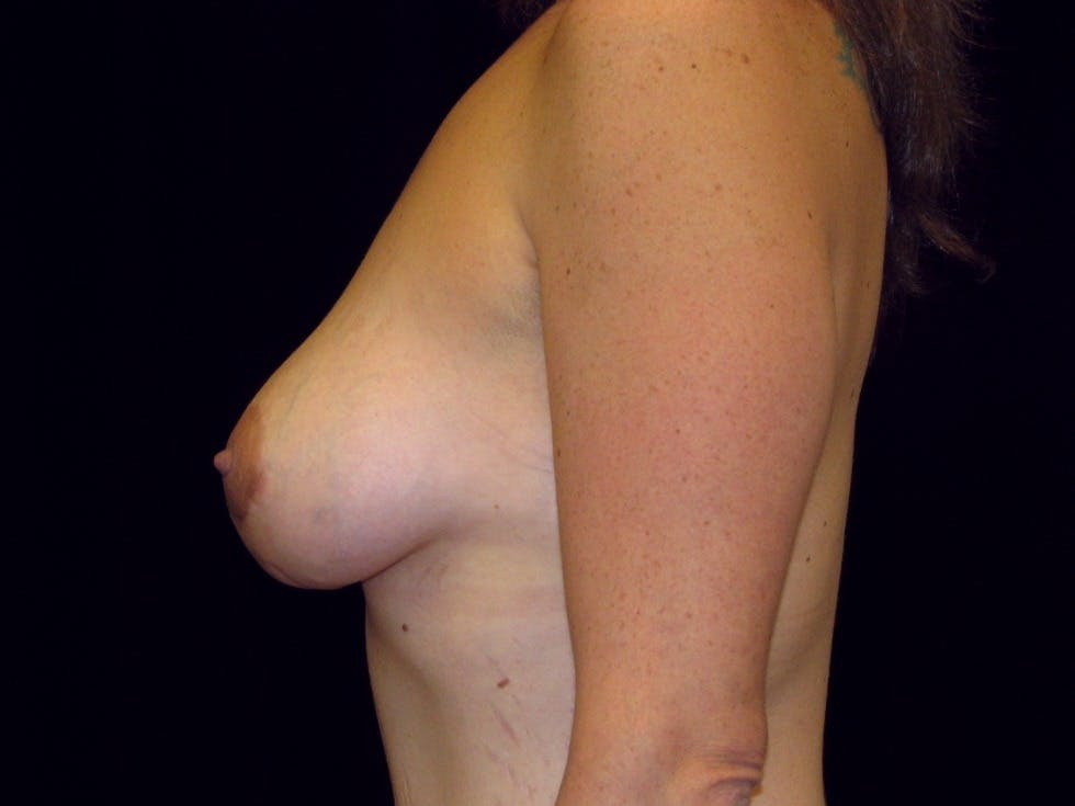 Breast Augmentation Gallery - Patient 39245725 - Image 10