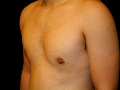 Gynecomastia Gallery - Patient 39245726 - Image 6