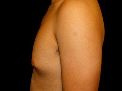 Gynecomastia Gallery - Patient 39245726 - Image 7