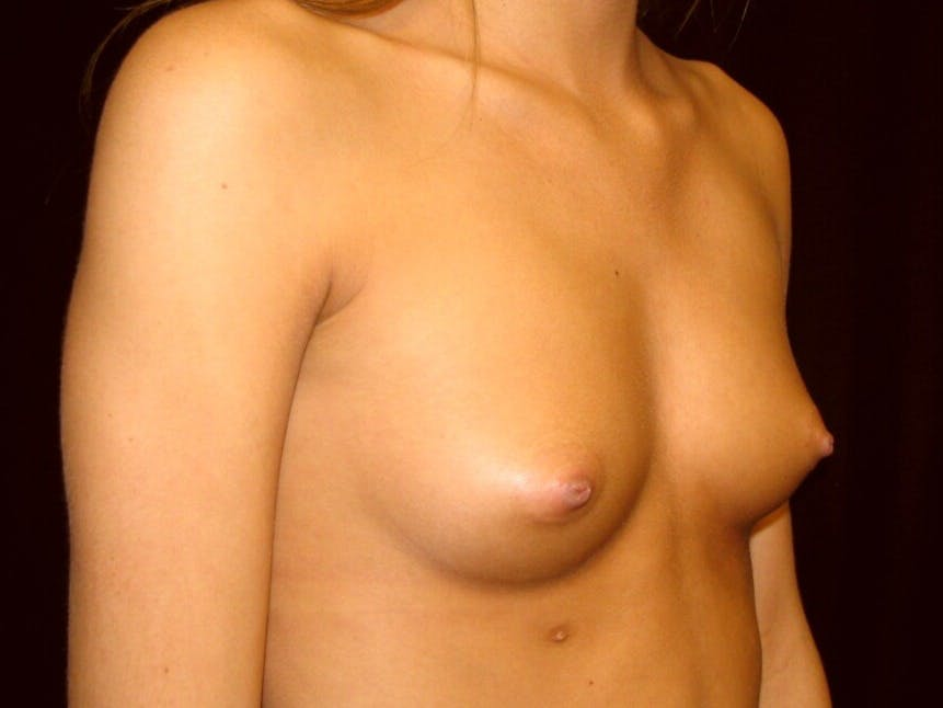 Breast Augmentation Gallery - Patient 39245733 - Image 1