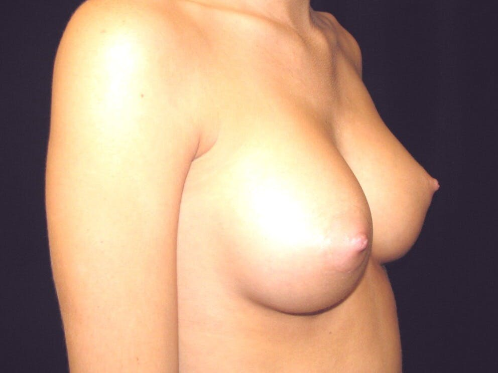 Breast Augmentation Gallery - Patient 39245733 - Image 2