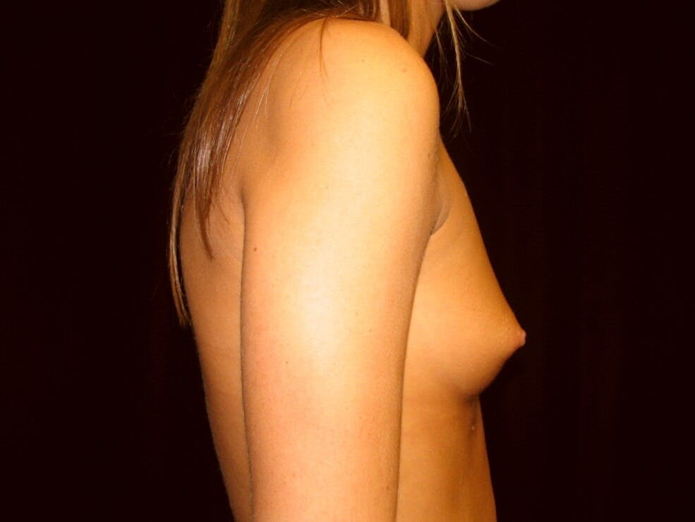 Breast Augmentation Gallery - Patient 39245733 - Image 3