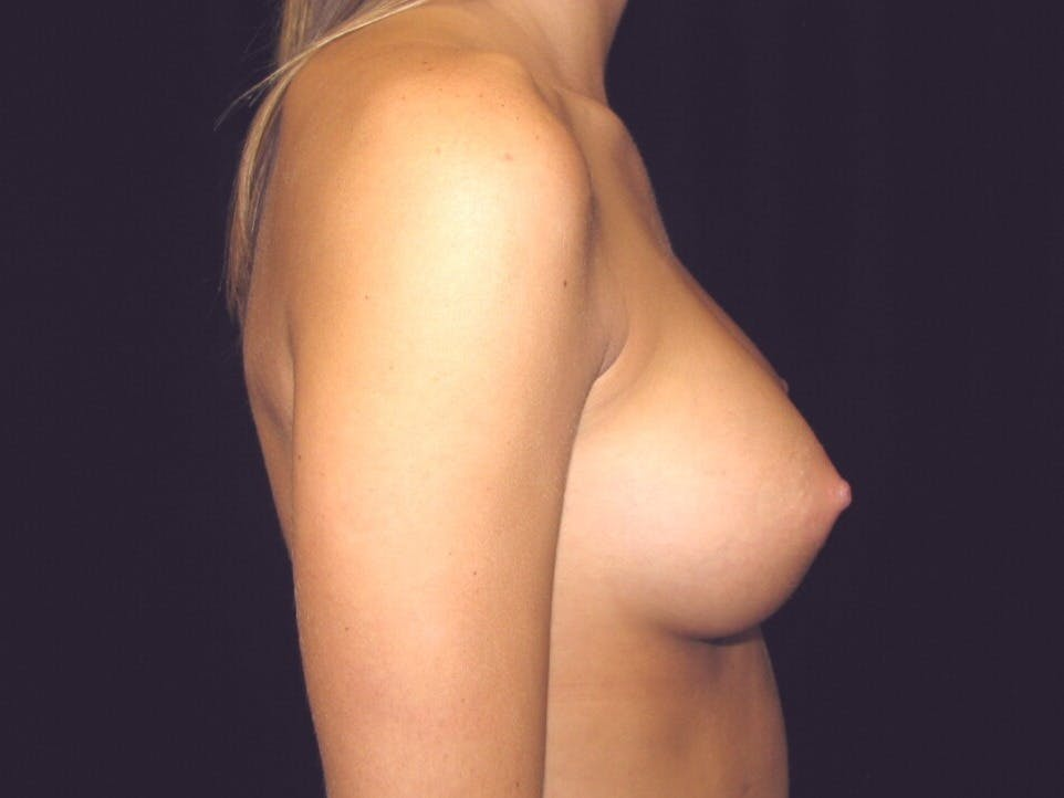 Breast Augmentation Gallery - Patient 39245733 - Image 4