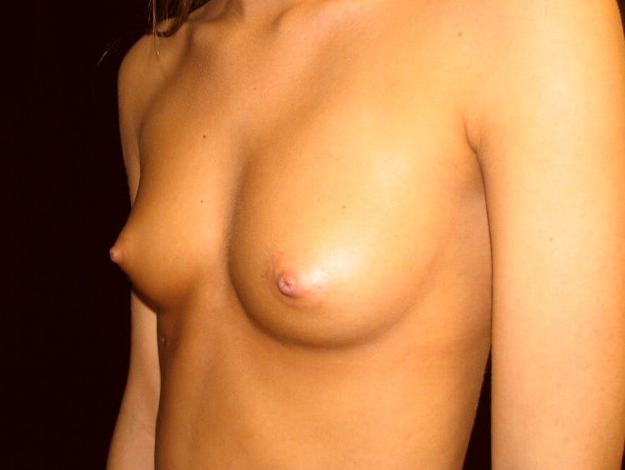 Breast Augmentation Gallery - Patient 39245733 - Image 5