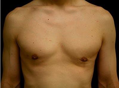 Gynecomastia Gallery - Patient 39245732 - Image 2
