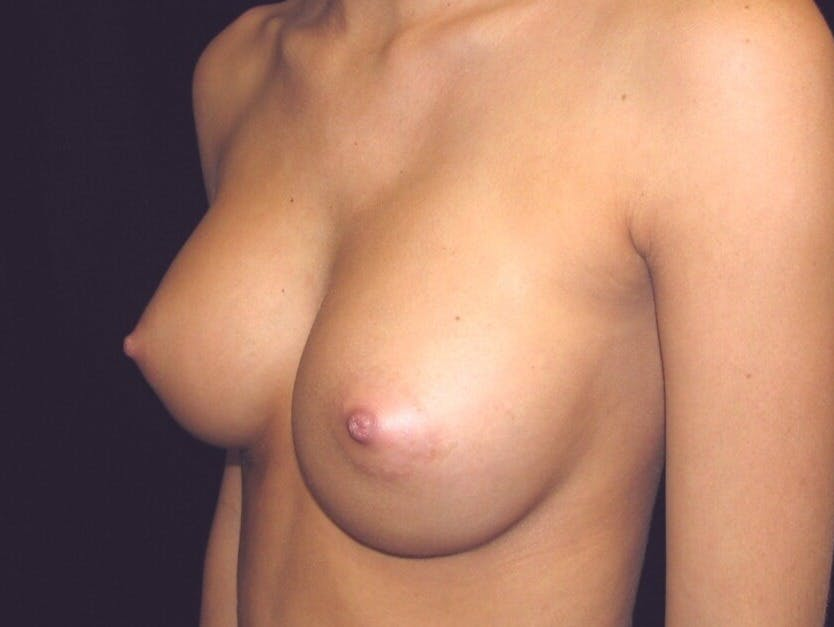 Breast Augmentation Gallery - Patient 39245733 - Image 6