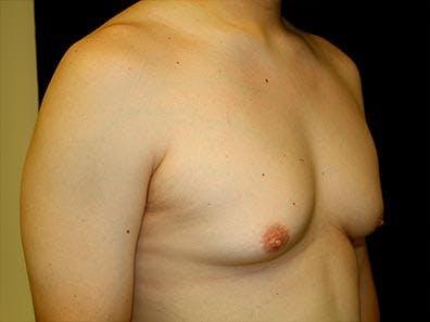 Gynecomastia Gallery - Patient 39245732 - Image 3