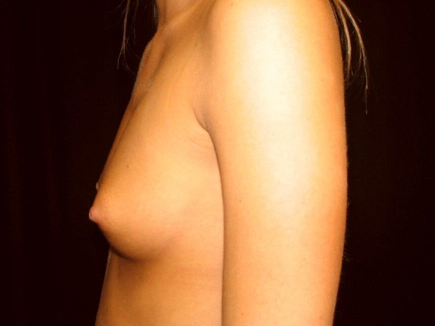 Breast Augmentation Gallery - Patient 39245733 - Image 7