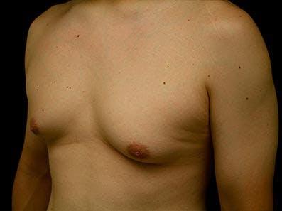 Gynecomastia Gallery - Patient 39245732 - Image 5