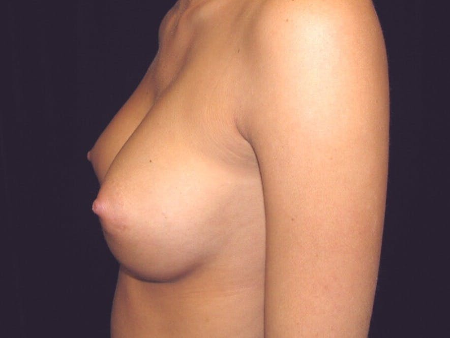 Breast Augmentation Gallery - Patient 39245733 - Image 8