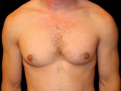 Gynecomastia Gallery - Patient 39245740 - Image 1
