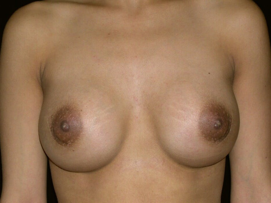 Breast Augmentation Gallery - Patient 39245742 - Image 2