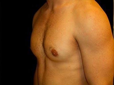 Gynecomastia Gallery - Patient 39245740 - Image 4
