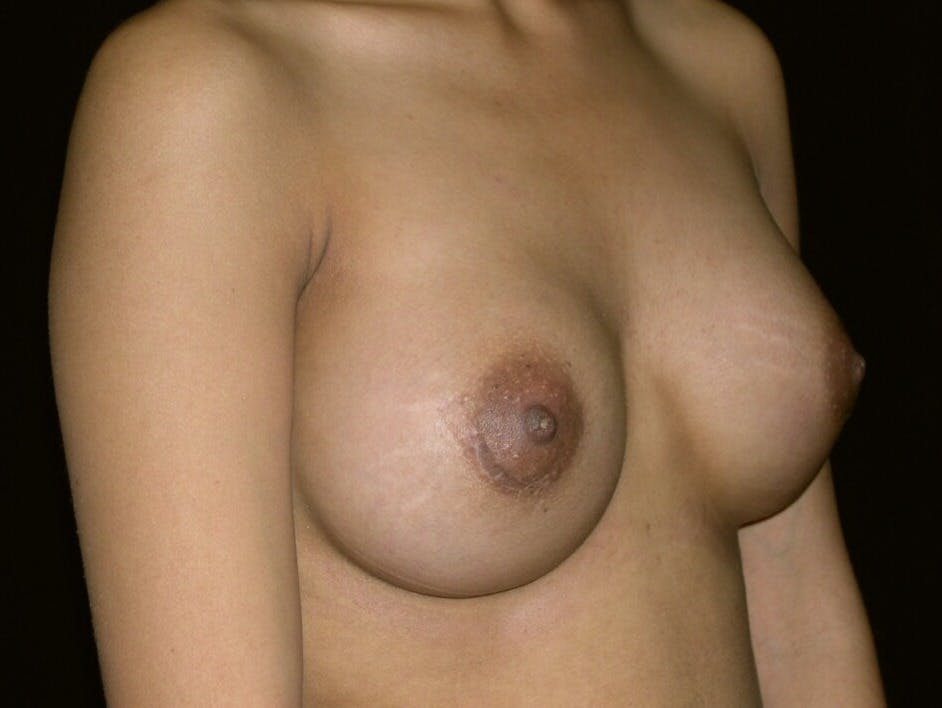 Breast Augmentation Gallery - Patient 39245742 - Image 4