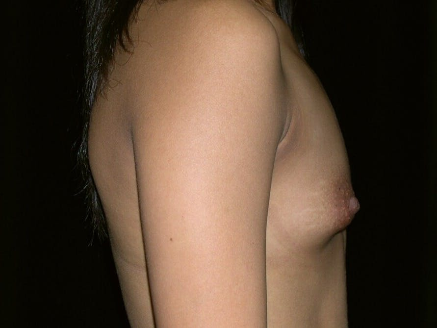 Breast Augmentation Gallery - Patient 39245742 - Image 5