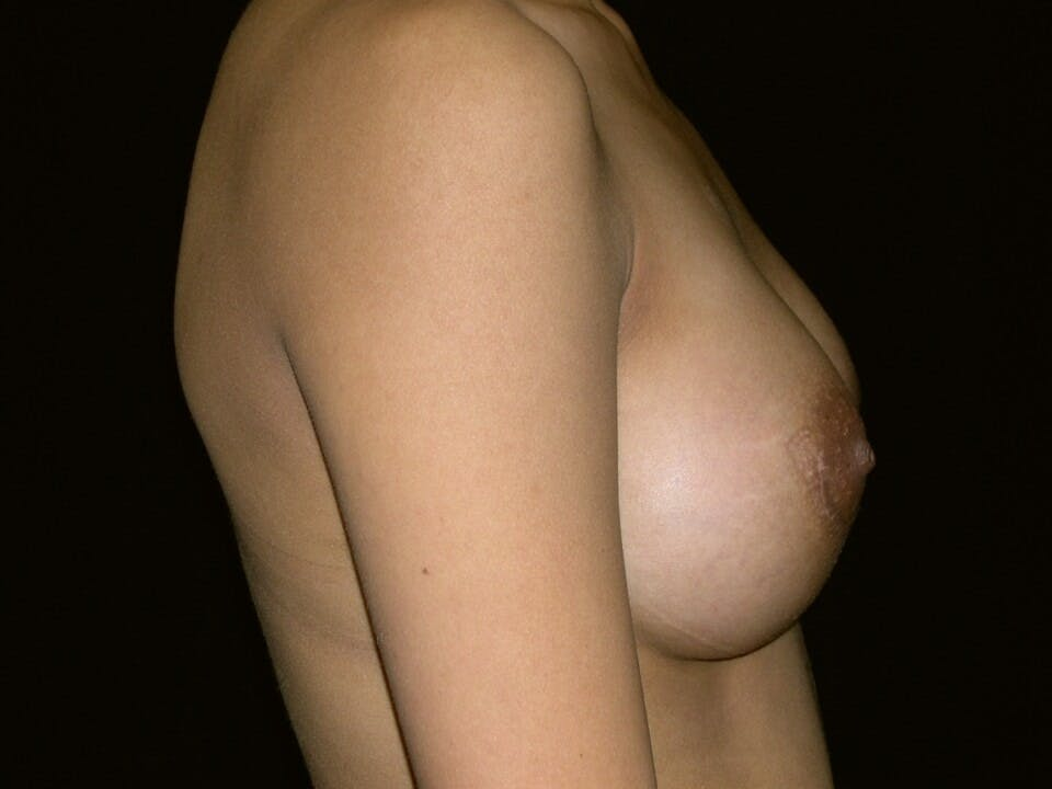 Breast Augmentation Gallery - Patient 39245742 - Image 6