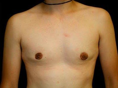 Gynecomastia Gallery - Patient 39245743 - Image 2