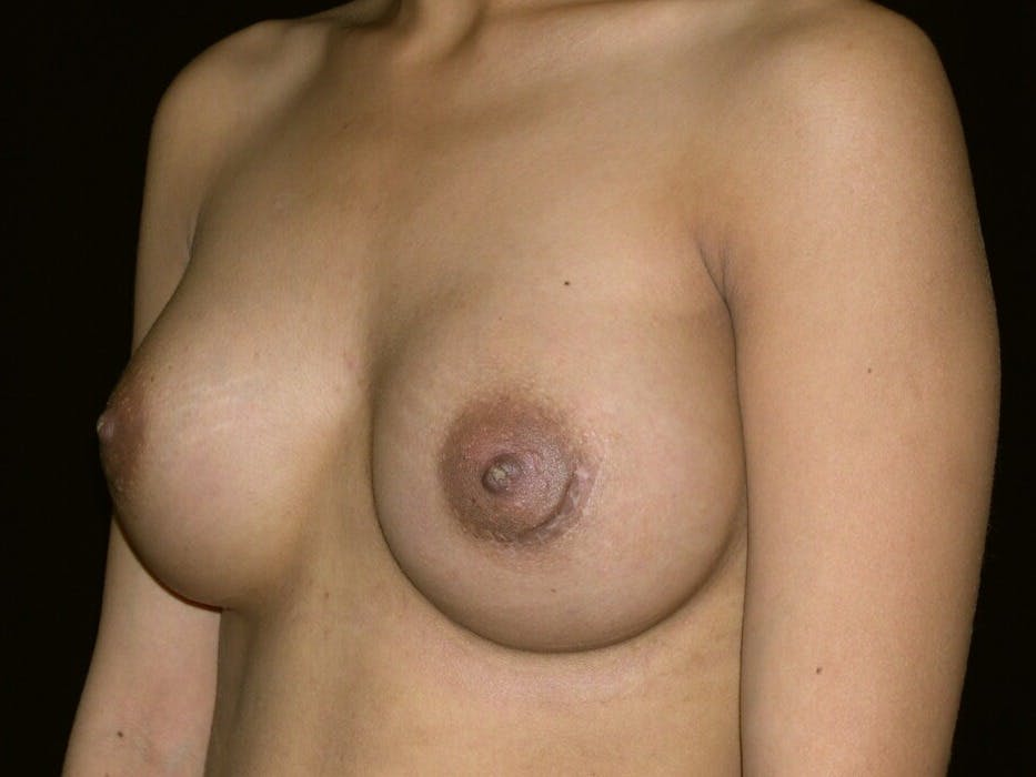 Breast Augmentation Gallery - Patient 39245742 - Image 8