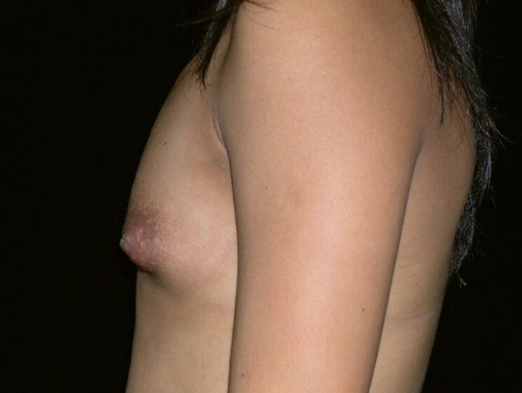 Breast Augmentation Gallery - Patient 39245742 - Image 9