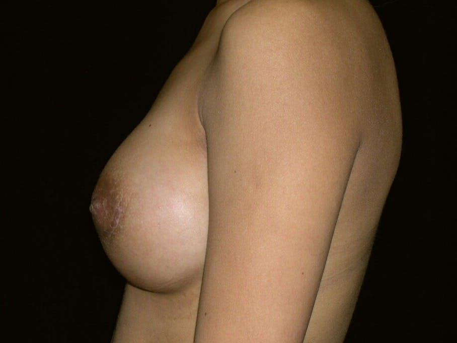 Breast Augmentation Gallery - Patient 39245742 - Image 10