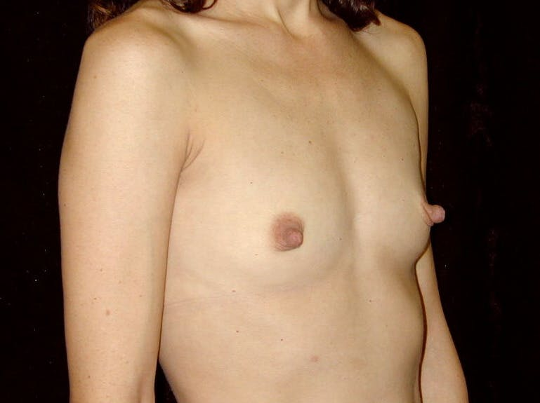 Breast Augmentation Gallery - Patient 39245749 - Image 1