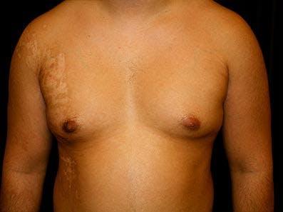 Gynecomastia Gallery - Patient 39245747 - Image 1