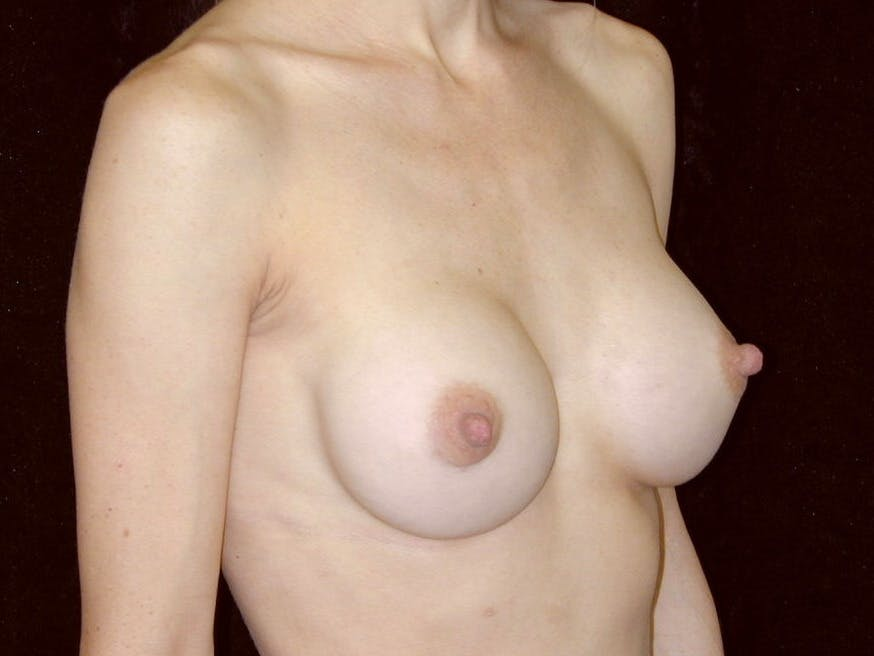 Breast Augmentation Gallery - Patient 39245749 - Image 2