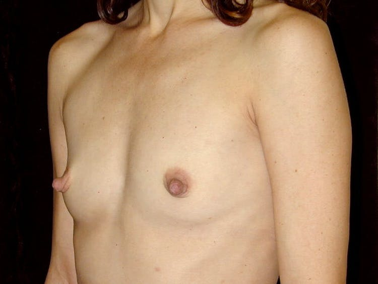 Breast Augmentation Gallery - Patient 39245749 - Image 3