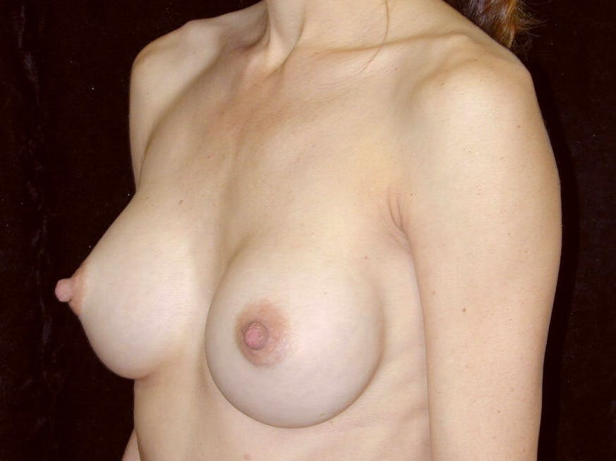 Breast Augmentation Gallery - Patient 39245749 - Image 4