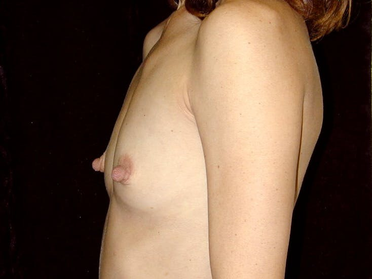 Breast Augmentation Gallery - Patient 39245749 - Image 5