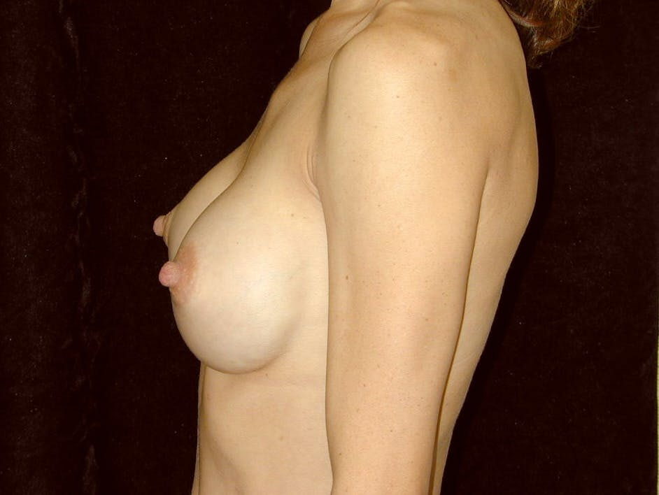 Breast Augmentation Gallery - Patient 39245749 - Image 6